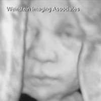 3D ultrasound - Weinstein Imaging Associates