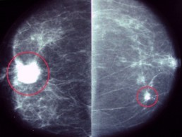 Weinstein Imaging Associates Mammography