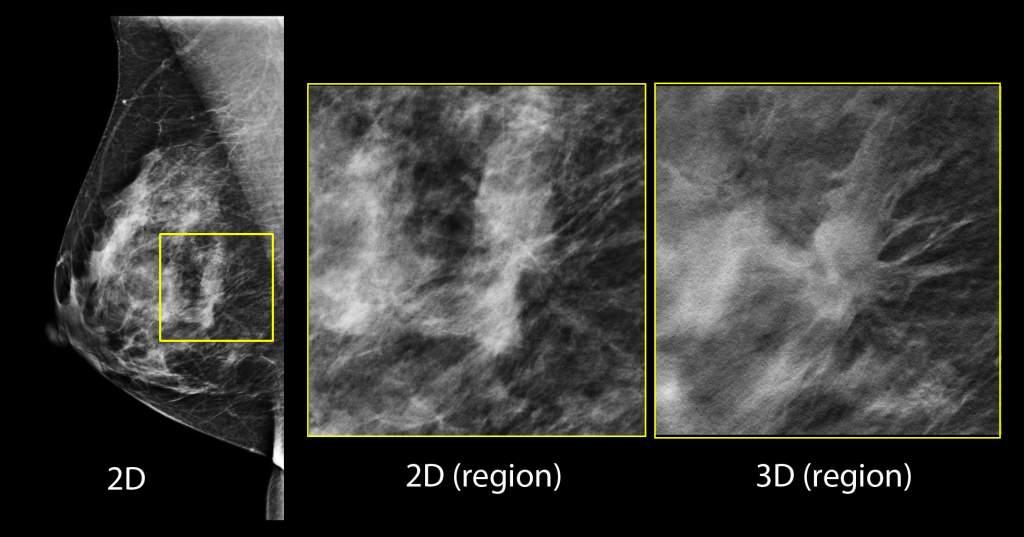 Weinstein Imaging Associates Tomosynthesis